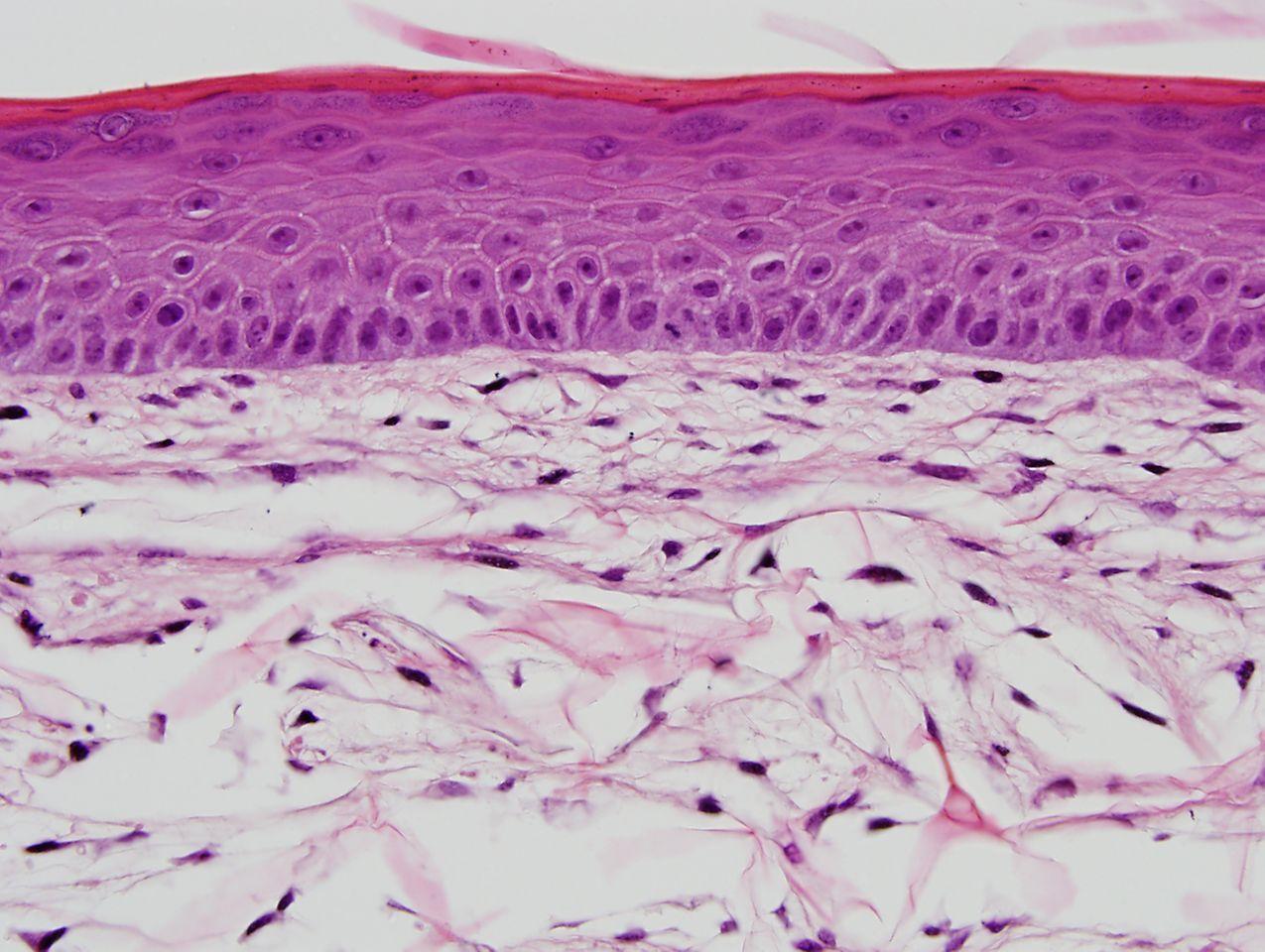 Hochentwickelte menschliche Hautgewebemodelle von Henkel